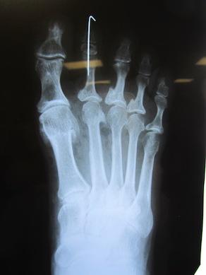 Toes_X-ray.jpg