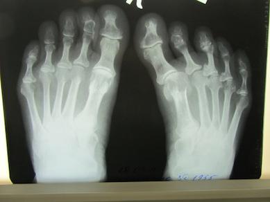 toes_Xray_before.jpg